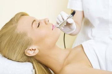 Microdermabrasions Behandlung