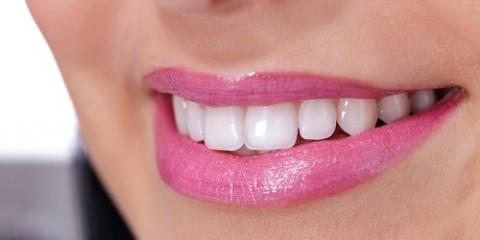 Junge Frau mit weißen Zähnen lächelt